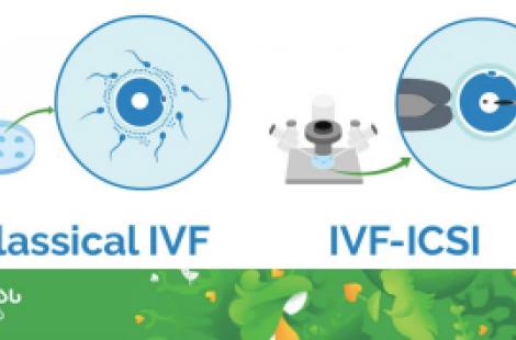 ინ ვიტრო განაყოფიერება IVF & ინტრაციტოპლაზმური სპერმის ინექცია ICSI